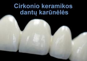 Cirkonio keramikos dantų karūnėlės